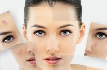 ۳ روش برای درمان جای جوش صورت و بدن
