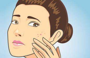 اینفوگرافیک: ۶ روش موثر برای درمان جوش صورت