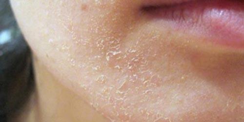 پوست خشک با کمک لوسیون بهبود نمییابد