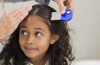 چگونه شپش سر را بهطور کامل درمان کنیم؟
