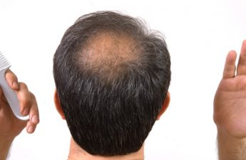 ۷ اشتباه که آقایان با موهای کم پشت مرتکب آن میشوند
