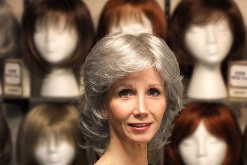 جایگزینهای درمان ریزش مو