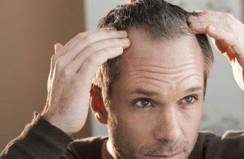 درمان ریزش مو و روشهایی که برای درمان ضروری است