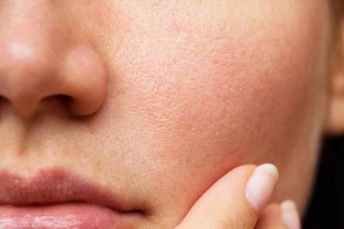 خرید کرم ضد لک برای رفع لک ناشی از بستهشدن منافذ پوست