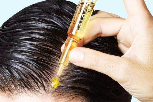 درمانهای دارویی ریزش مو
