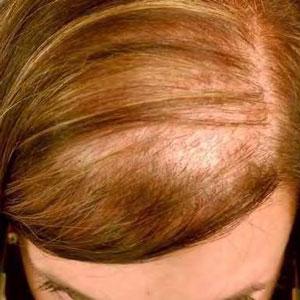 ریزش موی پراکنده