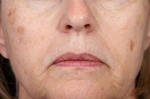 انواع لکههای پوستی