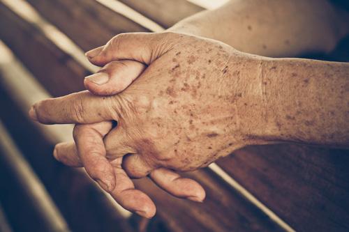 نشانههای رایج لکهای پوستی
