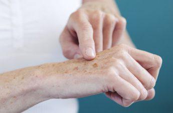 دلایل ایجاد لک پوستی چیست و چطور باید با آنها مقابله کرد؟