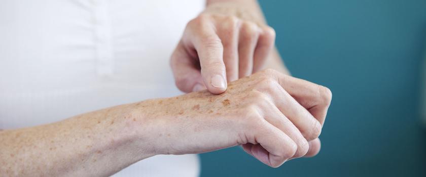 دلایل ایجاد لکههای پوستی چیست و چطور باید با آنها مقابله کرد؟