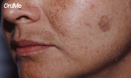 لکه های تیره پوستی را بیشتر بشناسید.