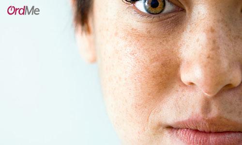 یکی از درمان های لکهای تیره روی پوست استفاده از درمان های طبیعی و خانگی است.