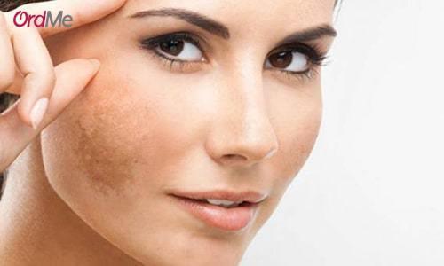 روش های کلینیکی برای درمان لک