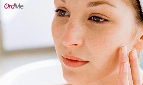 بعد از بروز لکه های پوستی، از بهترین کرم ضد لک استفاده کنید.