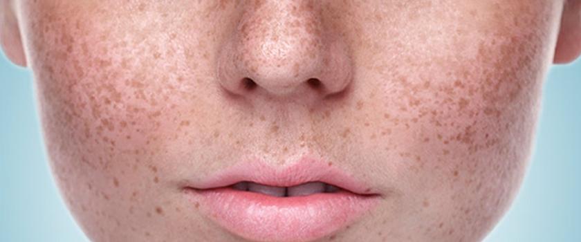 بهترین راه های جلوگیری از بروز لکه های پوستی و درمان آن ها