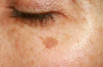 آشنایی با انواع لک پوستی ناشی از نور خورشید و رفع آن