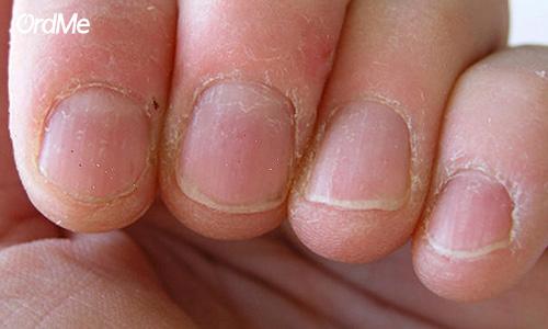 تغییر رنگ و ظاهر ناخن نشانه عفونت است