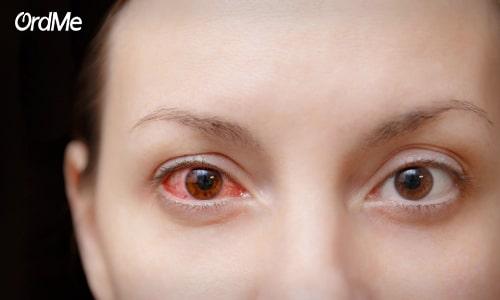 عارضه هایی که منجربه تیرگی و پف زیر چشم میشوند