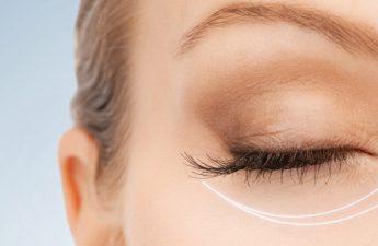 تیرگی و پف زیر چشم | از بررسی علت تا روش های درمان آن