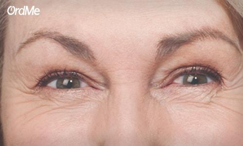 آسیب پذیر بودن پوست دور چشم این ناحیه را زودتر پیر میکند