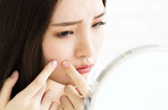 بررسی روش های تشخیص و درمان جوش هورمونی در خانم ها