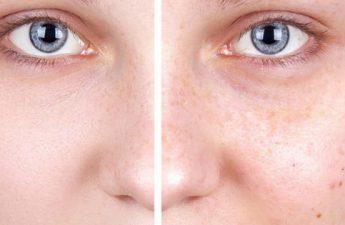 فواید ویتامین C برای پوست و اهمیت استفاده از آن در کرم ضد لک