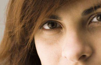 دلایل سیاهی زیر چشم | چرا زیر چشم افراد تیره میشود؟