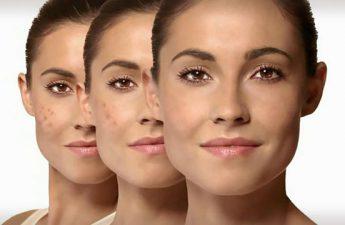 درمان لکه های پوست تیره همراه با راهنمای خرید کرم ضد لک عالی