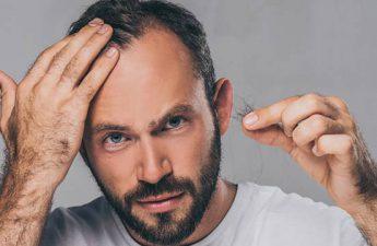 الگوی طاسی مردانه و زنانه | بررسی دلایل اصلی ریزش مو