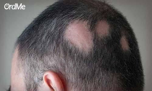 ریزش موی سکه ای یکی از علت های خرارش پوست سر