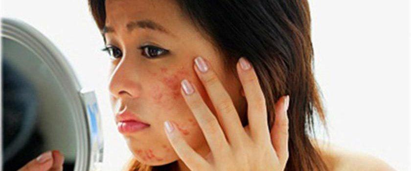 پرسش و پاسخ رایج درباره جوش صورت و بدن به همراه درمان آن