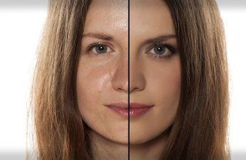 روش های مراقبت از پوست چرب و درمان آن در خانه