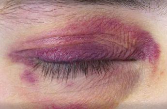 علت قرمزی دور چشم چیست و چطور درمان میشود؟
