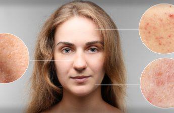 شایع ترین بیماری های پوستی کدامند؟