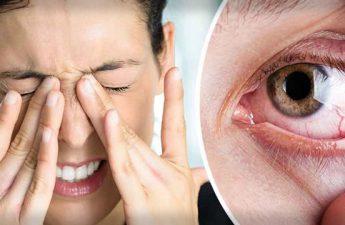 جلوگیری از بیماری های چشمی در اثر تابش نور خورشید