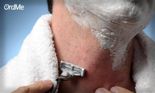 قبل از اصلاح پوستتان را حسابی بخور دهید